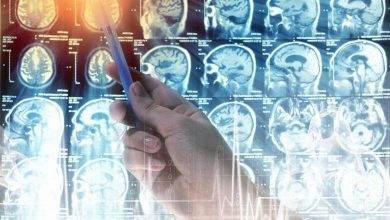 Photo of Beyin tümörü nedir ?