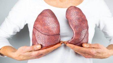 Photo of Akciğer Kanseri Nedir?