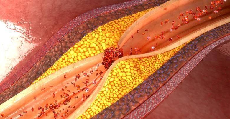 Yüksek Kolesterol Nedir
