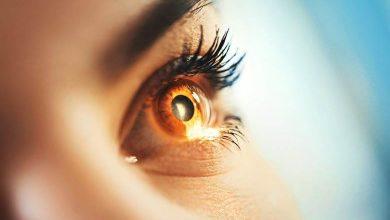 Photo of Göz Yanması Nedir ?