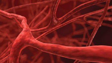 Photo of Behçet hastalığı hakkında sıkça sorulan 10 soru