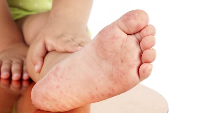 el ayak hastaligi nedir el ayak hastaligi belirtileri