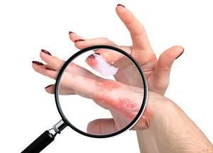 Photo of Sedef hastalığı tedavisi