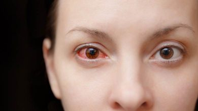 Photo of Göz kanlanması neden olur ?