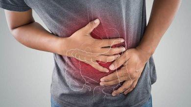 Photo of Crohn hastalığı nasıl teşhis edilir ?